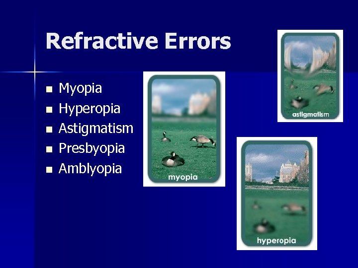 Refractive Errors n n n Myopia Hyperopia Astigmatism Presbyopia Amblyopia