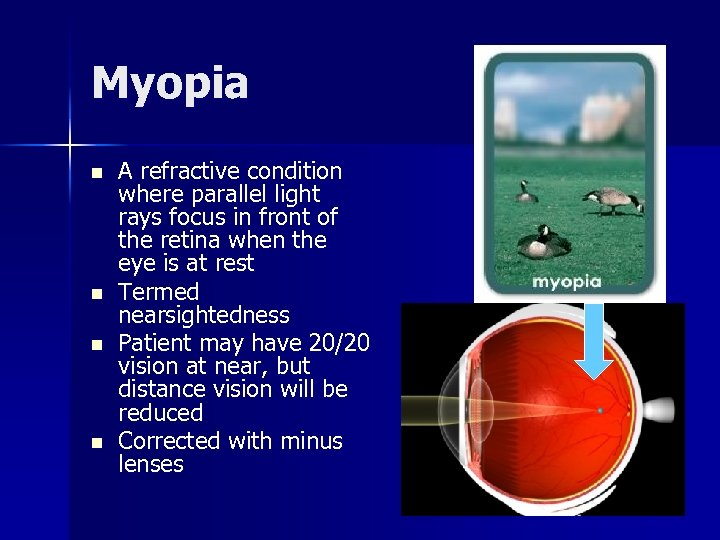 Myopia n n A refractive condition where parallel light rays focus in front of