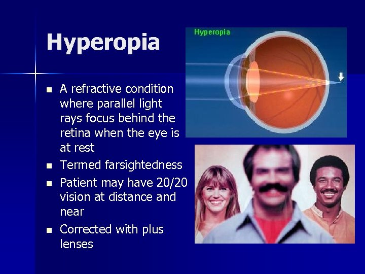Hyperopia n n A refractive condition where parallel light rays focus behind the retina