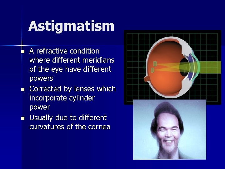 Astigmatism n n n A refractive condition where different meridians of the eye have