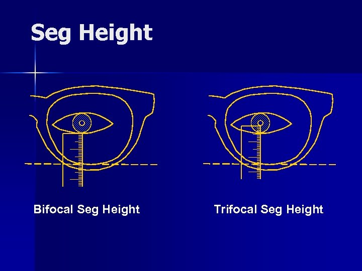 Seg Height Bifocal Seg Height Trifocal Seg Height