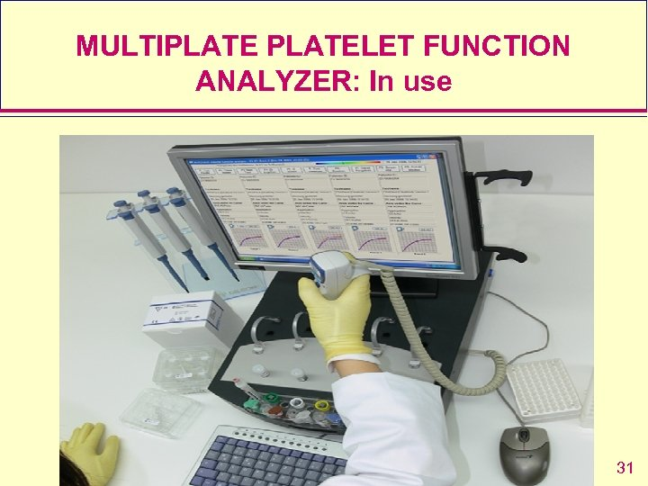 MULTIPLATELET FUNCTION ANALYZER: In use 31