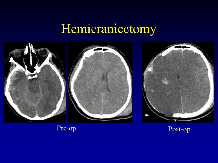 Hemicraniectomy Pre-op Post-op