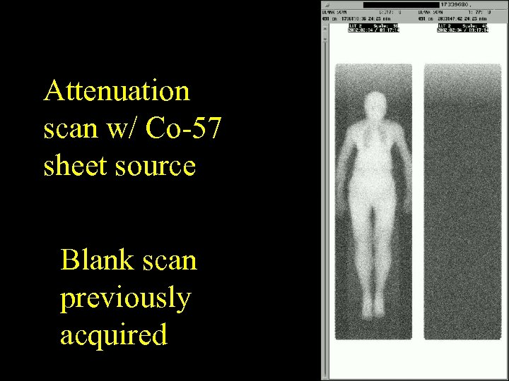 Attenuation scan w/ Co-57 sheet source Blank scan previously acquired