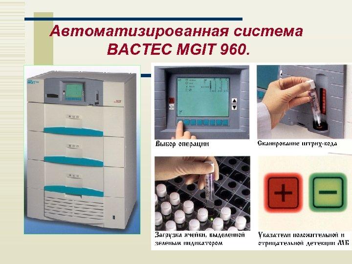 Автоматизированная система BACTEC MGIT 960.