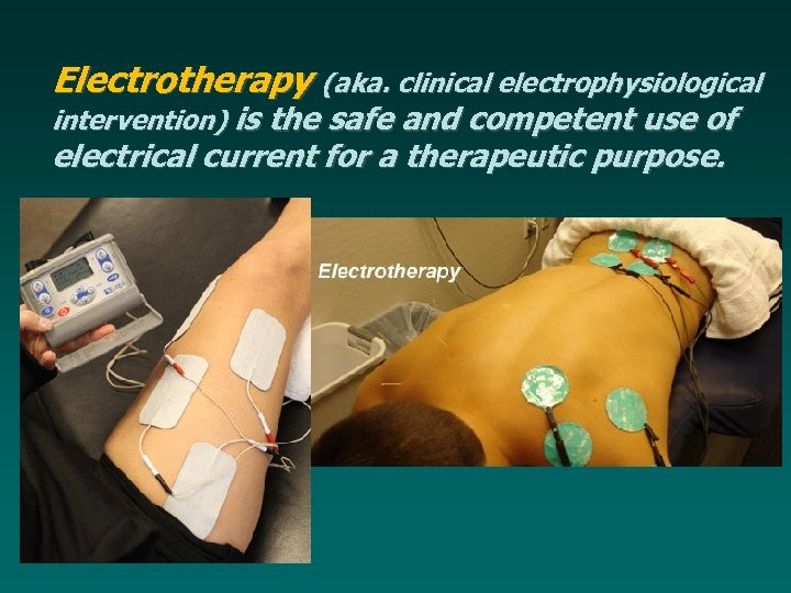 Electrotherapy (aka. clinical electrophysiological intervention) is the safe and competent use of electrical current