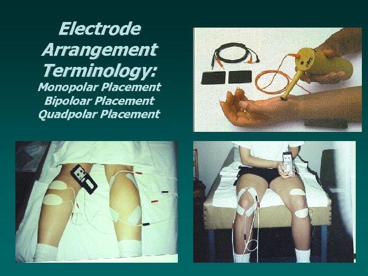 Electrode Arrangement Terminology: Monopolar Placement Bipoloar Placement Quadpolar Placement