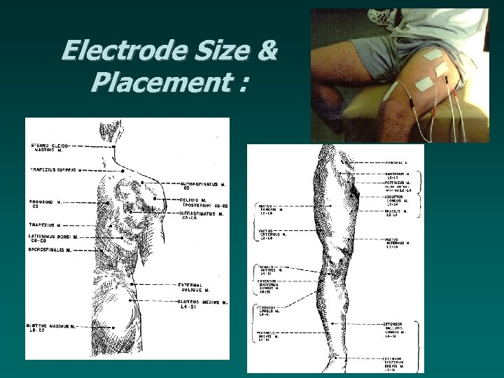 Electrode Size & Placement :
