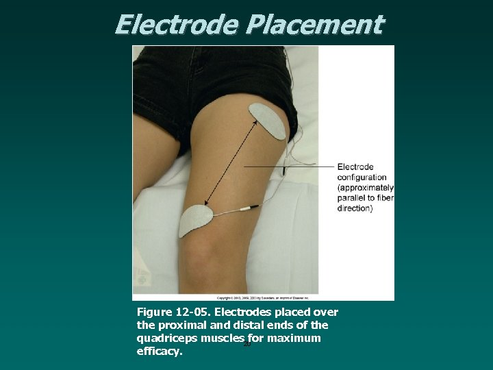 Electrode Placement Figure 12 -05. Electrodes placed over the proximal and distal ends of