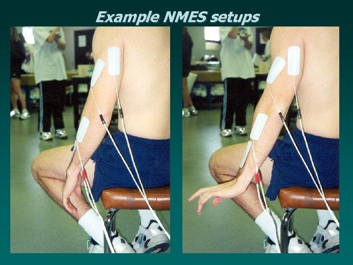 Example NMES setups