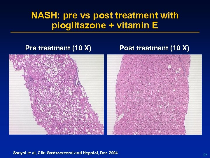 NASH: pre vs post treatment with pioglitazone + vitamin E Pre treatment (10 X)