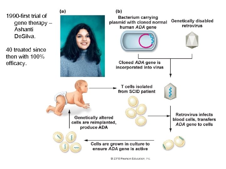 1990 -first trial of gene therapy – Ashanti De. Silva. 40 treated since then