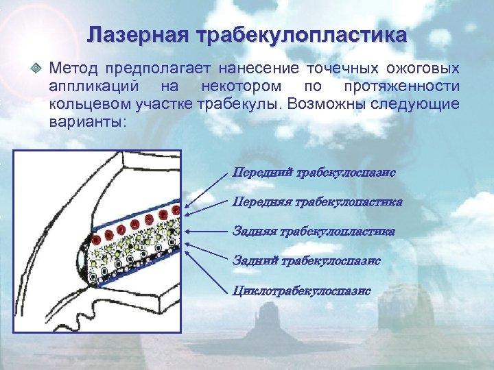 Лазерная трабекулопластика Метод предполагает нанесение точечных ожоговых аппликаций на некотором по протяженности кольцевом участке