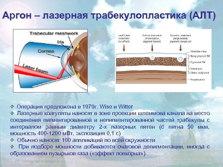 Аргон – лазерная трабекулопластика (АЛТ) Операция предложена в 1979 г. Wise и Witter Лазерные