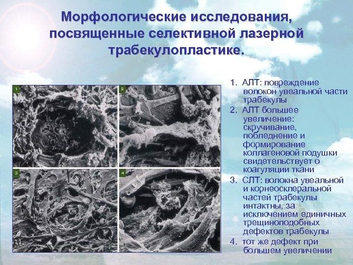 Морфологические исследования, посвященные селективной лазерной трабекулопластике. 1. АЛТ: повреждение волокон увеальной части трабекулы 2.