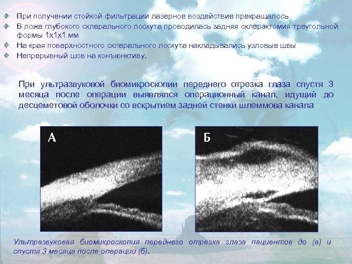 При получении стойкой фильтрации лазерное воздействие прекращалось В ложе глубокого склерального лоскута проводилась задняя