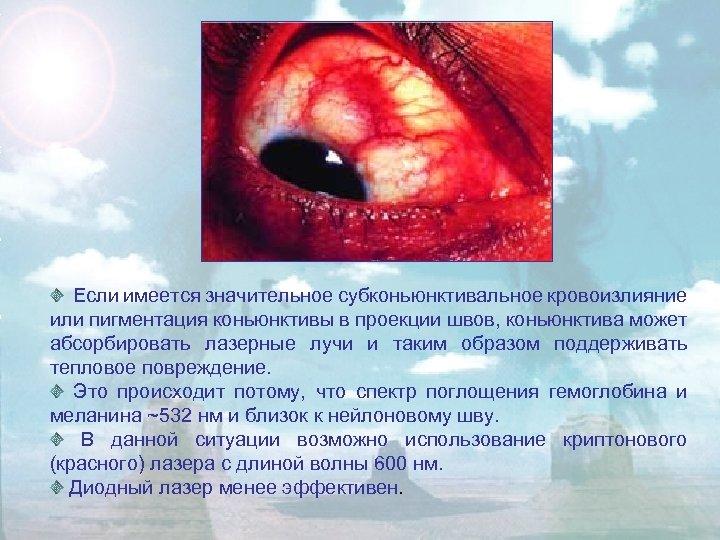 Если имеется значительное субконьюнктивальное кровоизлияние или пигментация коньюнктивы в проекции швов, коньюнктива может абсорбировать