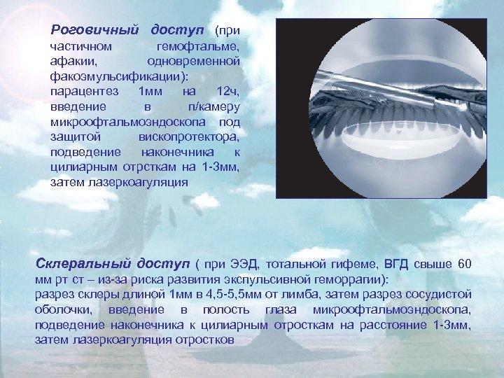 Роговичный доступ (при частичном гемофтальме, афакии, одновременной факоэмульсификации): парацентез 1 мм на 12 ч,