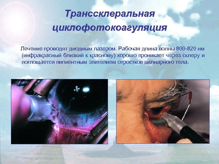 Транссклеральная циклофотокоагуляция Лечение проводят диодным лазером. Рабочая длина волны 800 -820 нм (инфракрасный близкий