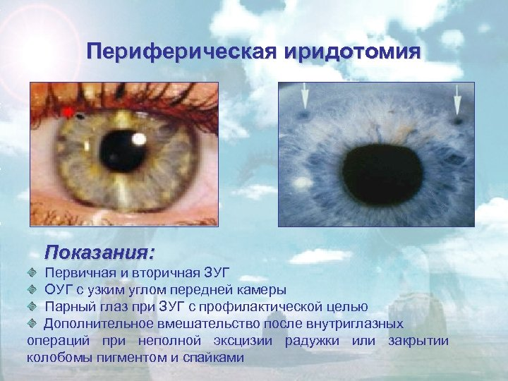 Периферическая иридотомия Показания: Первичная и вторичная ЗУГ ОУГ с узким углом передней камеры Парный