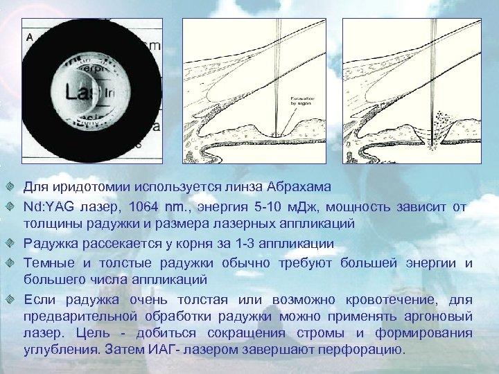 Для иридотомии используется линза Абрахама Nd: YAG лазер, 1064 nm. , энергия 5 -10