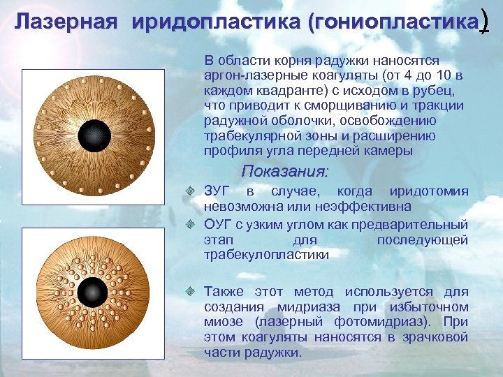 Лазерная иридопластика (гониопластика) В области корня радужки наносятся аргон-лазерные коагуляты (от 4 до 10
