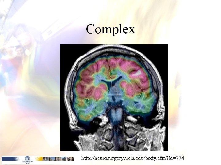 Complex http: //neurosurgery. ucla. edu/body. cfm? id=774