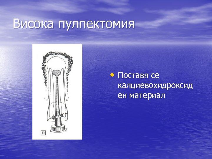 Висока пулпектомия • Поставя се калциевохидроксид ен материал