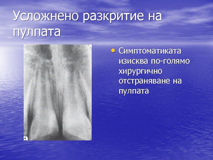 Усложнено разкритие на пулпата • Симптоматиката изисква по-голямо хирургично отстраняване на пулпата