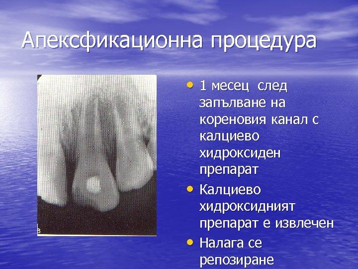 Апексфикационна процедура • 1 месец след • • запълване на кореновия канал с калциево