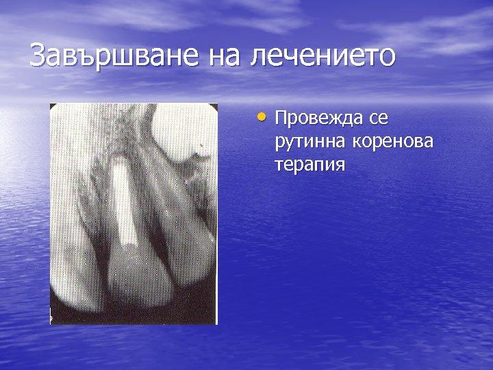 Завършване на лечението • Провежда се рутинна коренова терапия