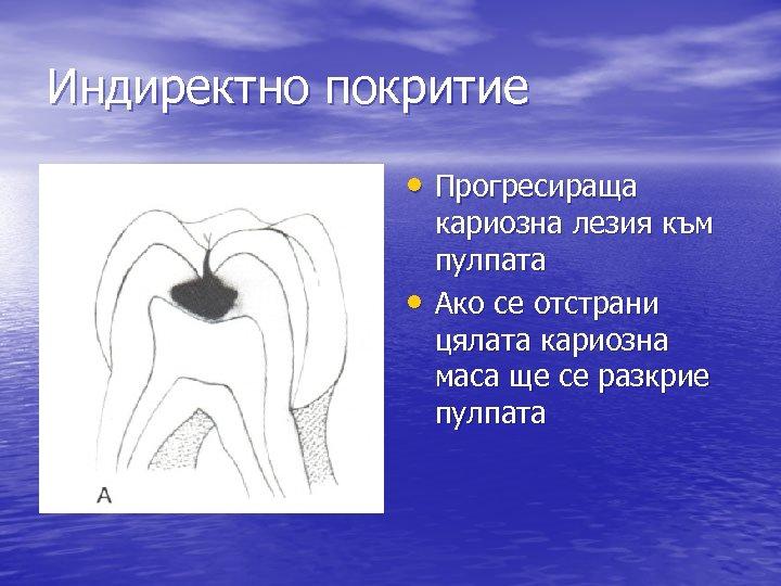 Индиректно покритие • Прогресираща • кариозна лезия към пулпата Ако се отстрани цялата кариозна