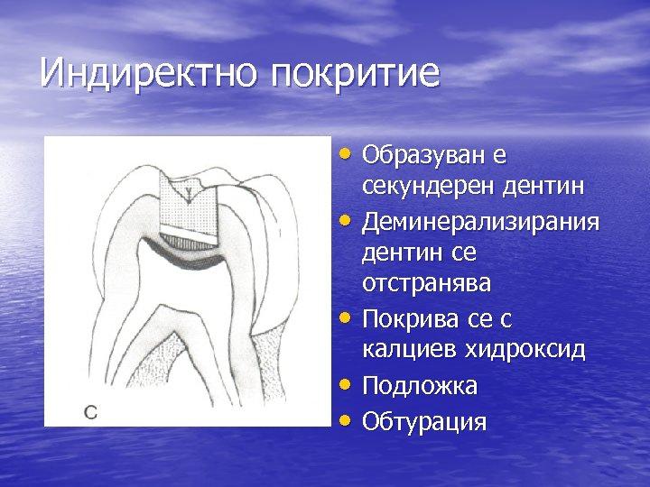 Индиректно покритие • Образуван е • • секундерен дентин Деминерализирания дентин се отстранява Покрива