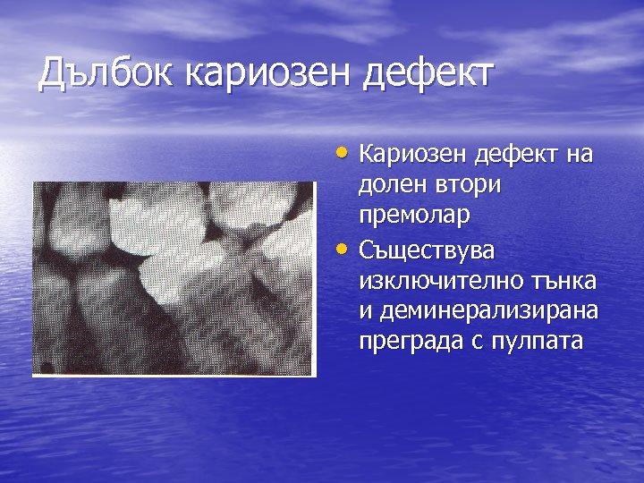 Дълбок кариозен дефект • Кариозен дефект на • долен втори премолар Съществува изключително тънка