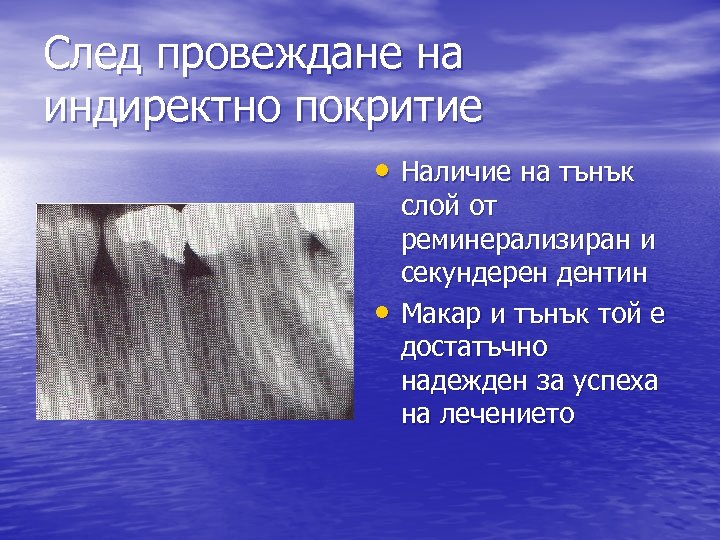 След провеждане на индиректно покритие • Наличие на тънък • слой от реминерализиран и
