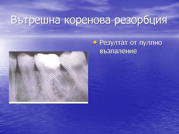 Вътрешна коренова резорбция • Резултат от пулпно възпаление