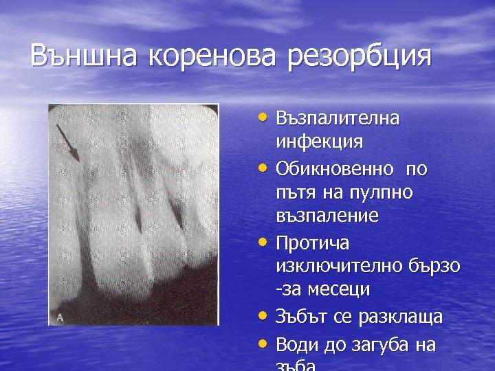 Външна коренова резорбция • Възпалителна • • инфекция Обикновенно по пътя на пулпно възпаление