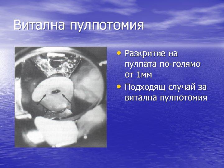 Витална пулпотомия • Разкритие на • пулпата по-голямо от 1 мм Подходящ случай за