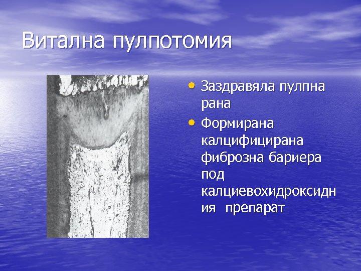 Витална пулпотомия • Заздравяла пулпна • рана Формирана калцифицирана фиброзна бариера под калциевохидроксидн ия