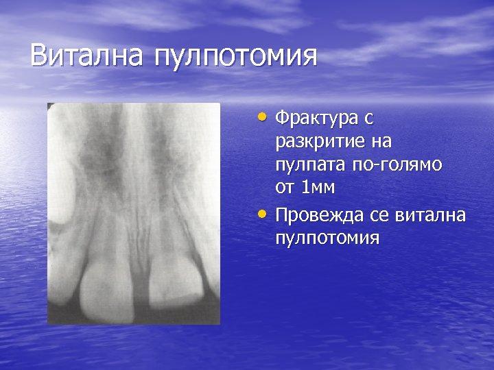 Витална пулпотомия • Фрактура с • разкритие на пулпата по-голямо от 1 мм Провежда