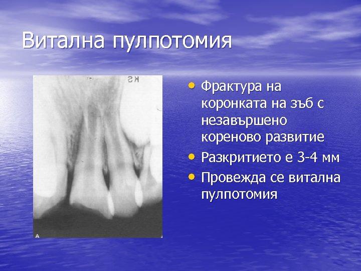 Витална пулпотомия • Фрактура на • • коронката на зъб с незавършено кореново развитие