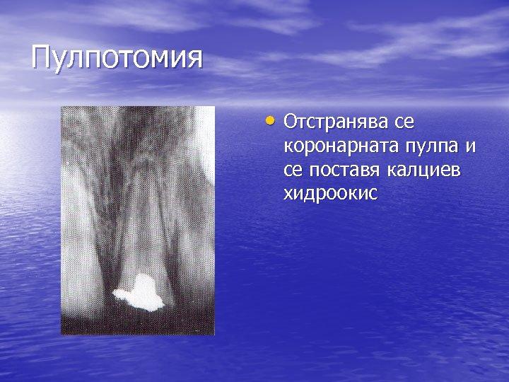 Пулпотомия • Отстранява се коронарната пулпа и се поставя калциев хидроокис