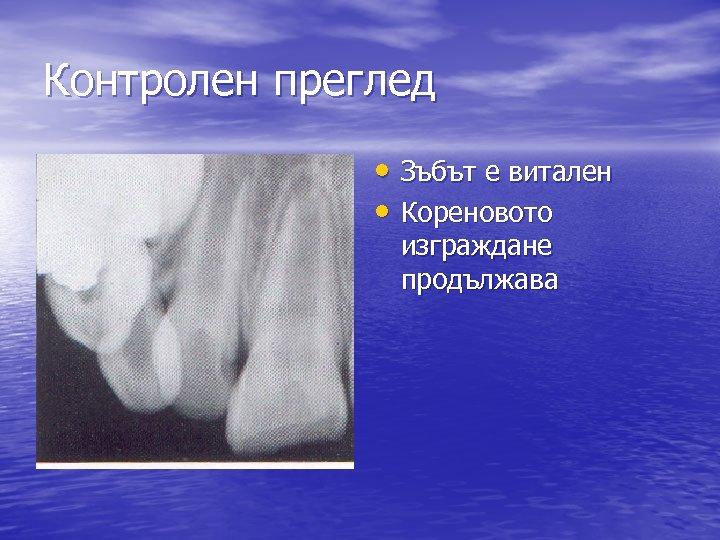 Контролен преглед • Зъбът е витален • Кореновото изграждане продължава