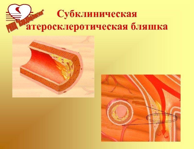 Субклиническая атеросклеротическая бляшка