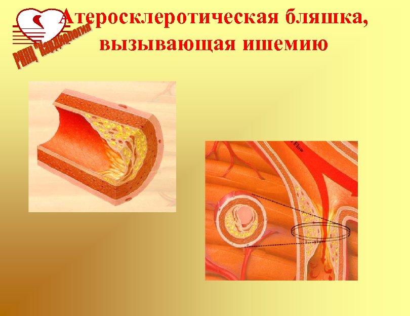Атеросклеротическая бляшка, вызывающая ишемию