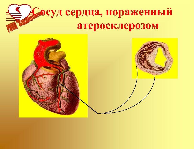 Сосуд сердца, пораженный атеросклерозом