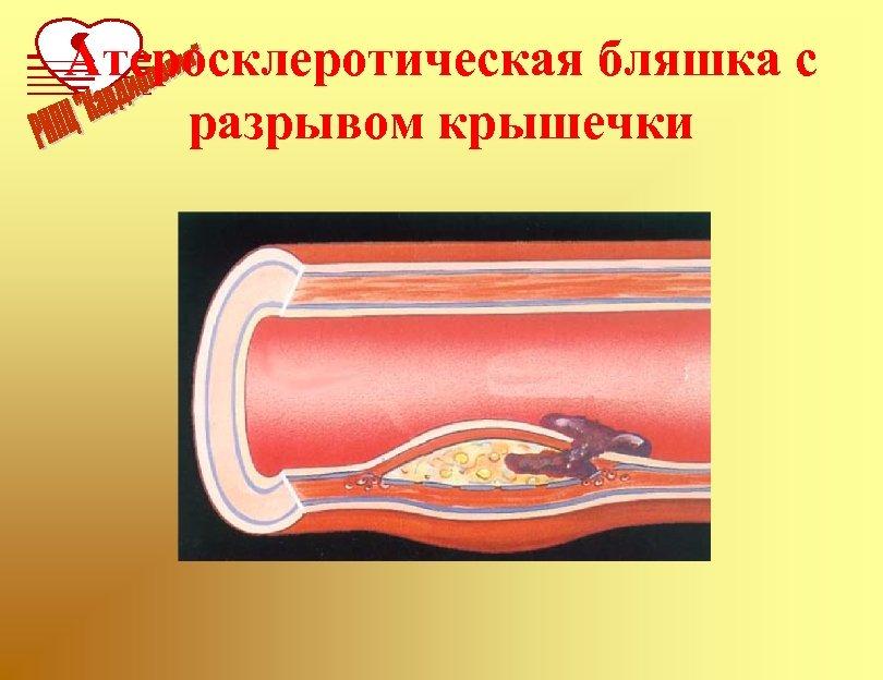 Атеросклеротическая бляшка с разрывом крышечки