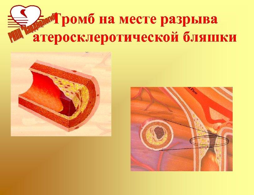 Тромб на месте разрыва атеросклеротической бляшки