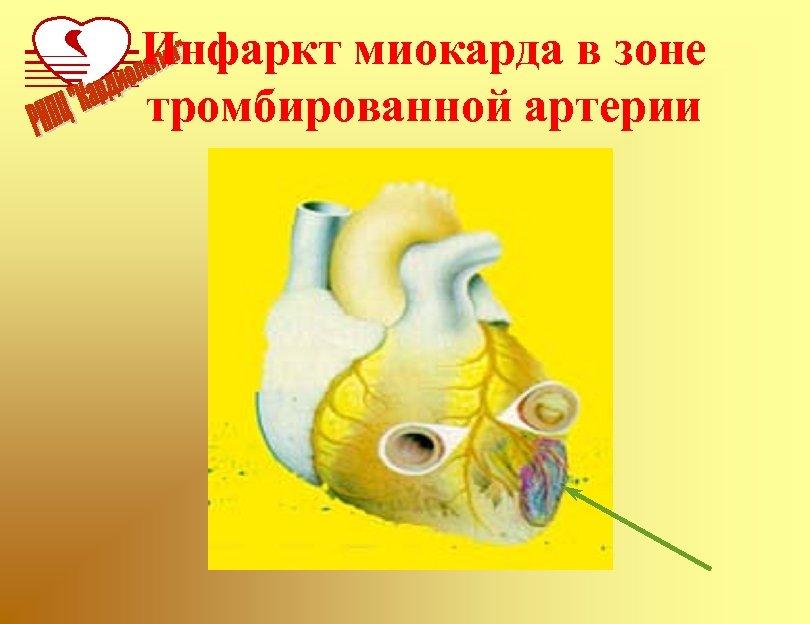 Инфаркт миокарда в зоне тромбированной артерии
