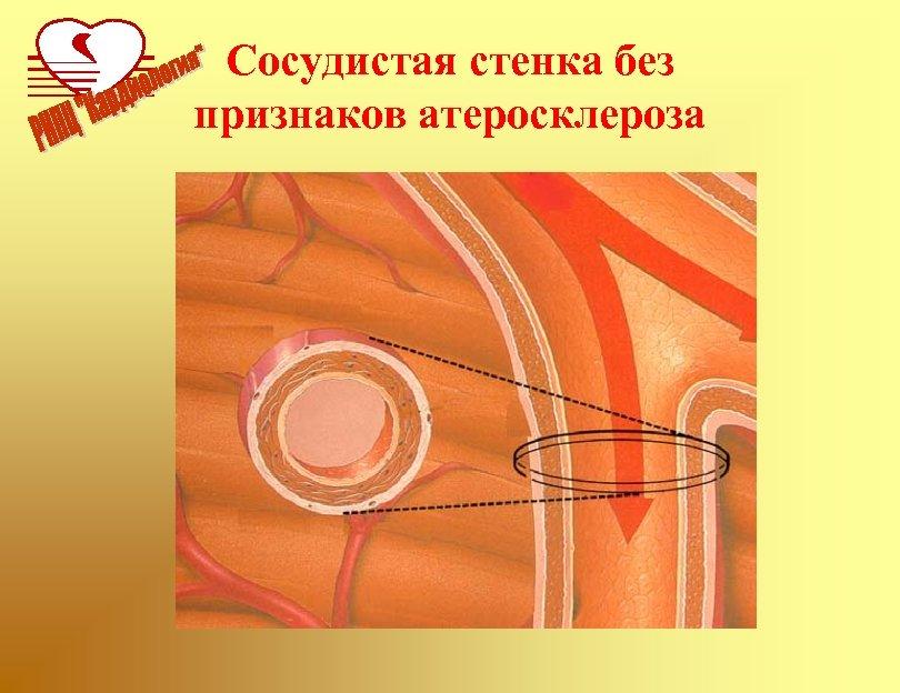 Сосудистая стенка без признаков атеросклероза